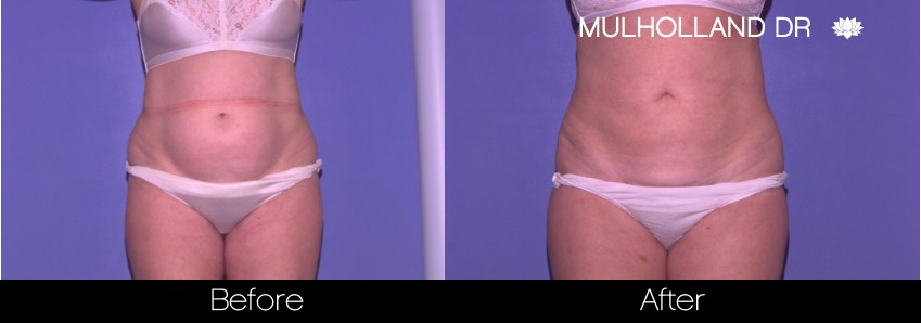 Liposuction - Before and After Gallery – Photo 43