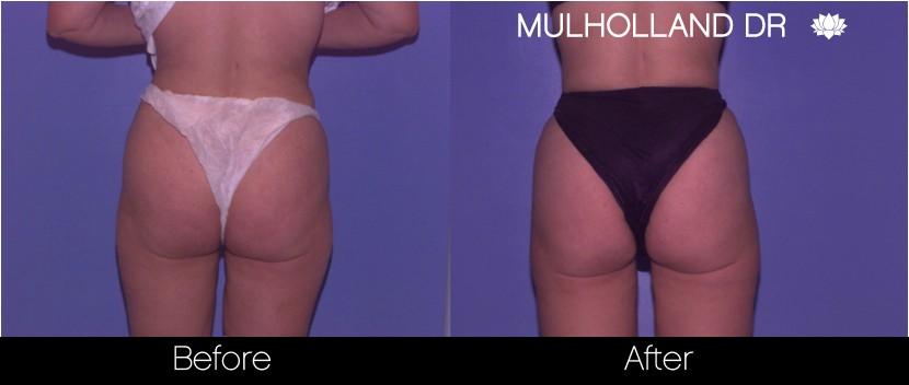 BodyTite Liposuction - Before and After Gallery – Photo 50