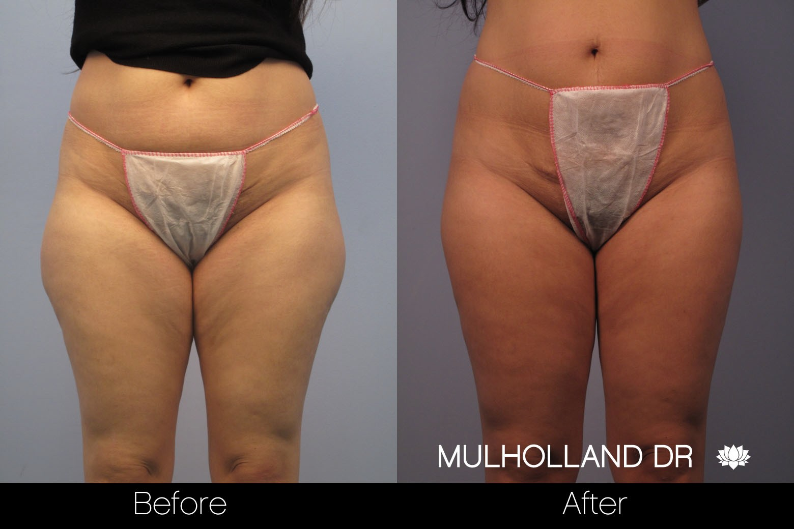 Liposuction - Before and After Gallery – Photo 48