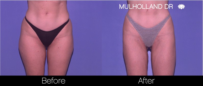 Liposuction - Before and After Gallery – Photo 52