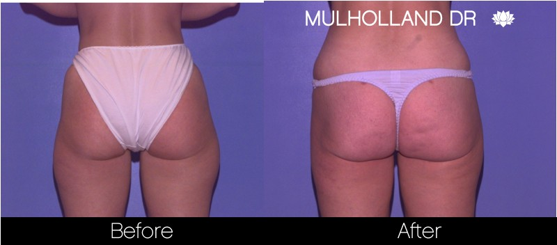Liposuction - Before and After Gallery – Photo 54