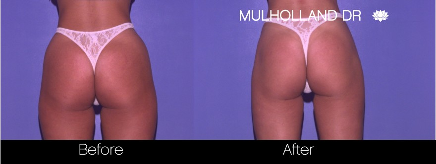Liposuction - Before and After Gallery – Photo 55