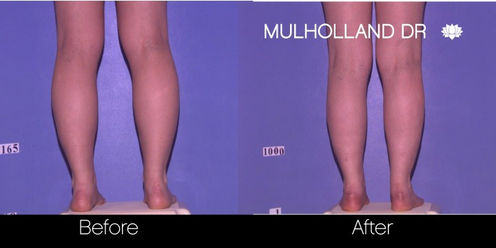 BodyTite Liposuction - Before and After Gallery – Photo 58