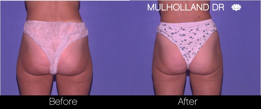 Liposuction - Before and After Gallery – Photo 59