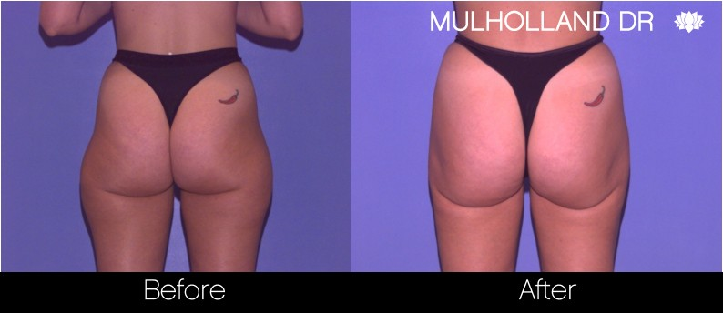 Liposuction - Before and After Gallery – Photo 60