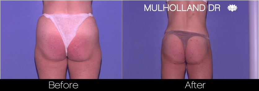 Liposuction - Before and After Gallery – Photo 61