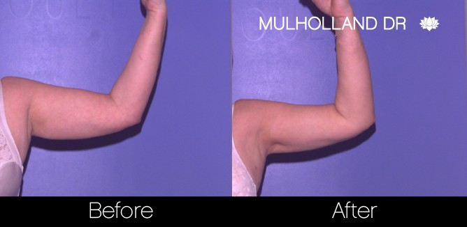 Liposuction - Before and After Gallery – Photo 62