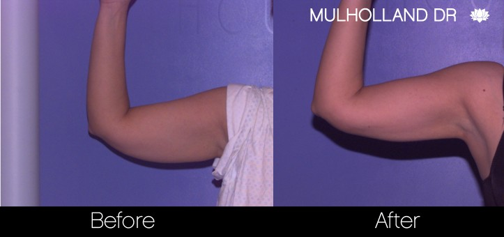 Liposuction - Before and After Gallery – Photo 64