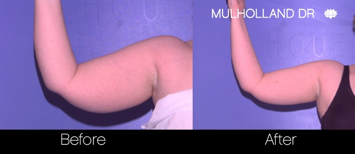 Liposuction - Before and After Gallery – Photo 66