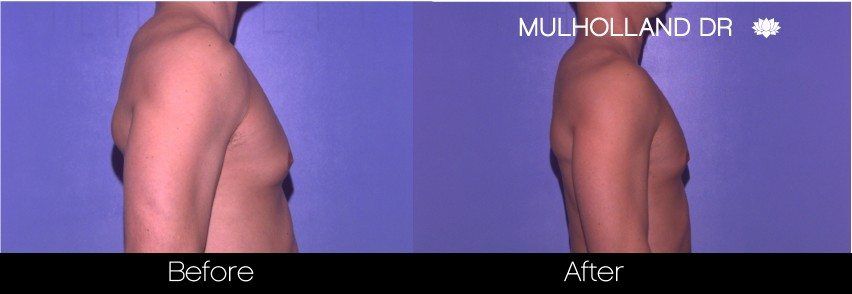 Liposuction - Before and After Gallery – Photo 69