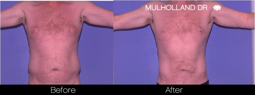 Liposuction - Before and After Gallery – Photo 79