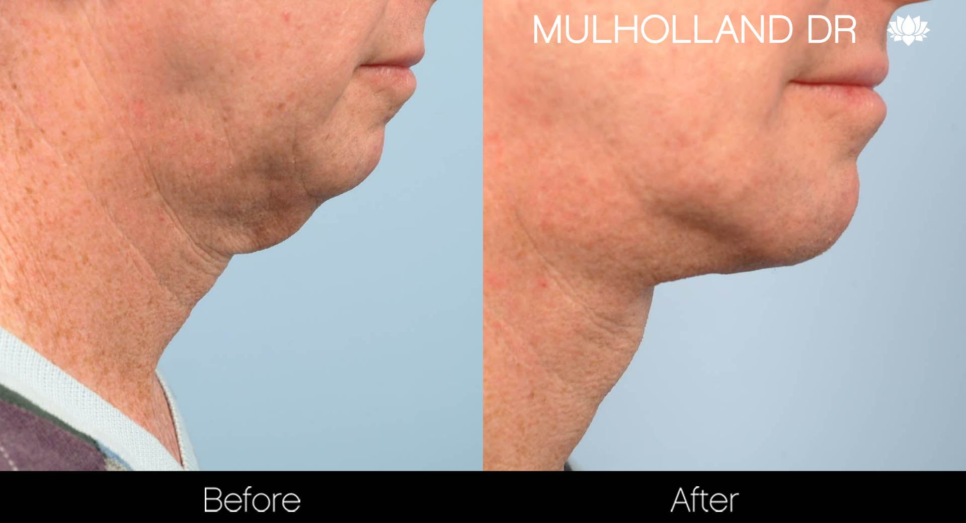 BodyTite Liposuction - Before and After Gallery – Photo 84