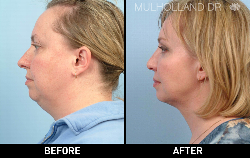 Liposuction - Before and After Gallery – Photo 87