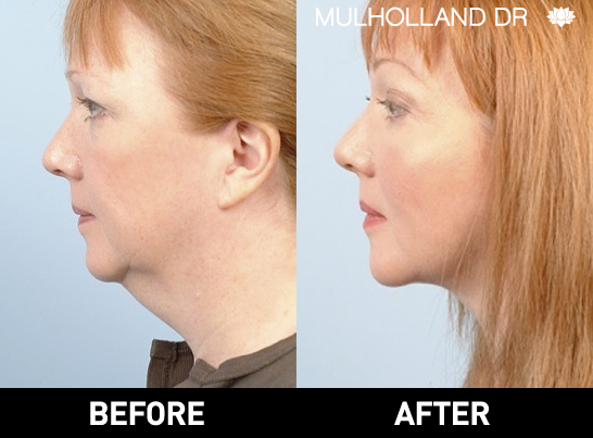 Liposuction - Before and After Gallery – Photo 89