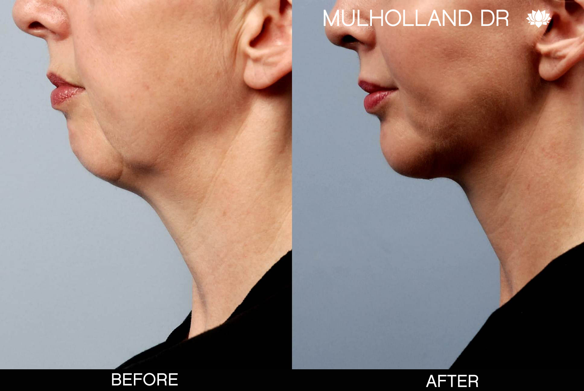 Liposuction - Before and After Gallery – Photo 92
