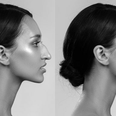 right profile view of before and after rhinoplasty