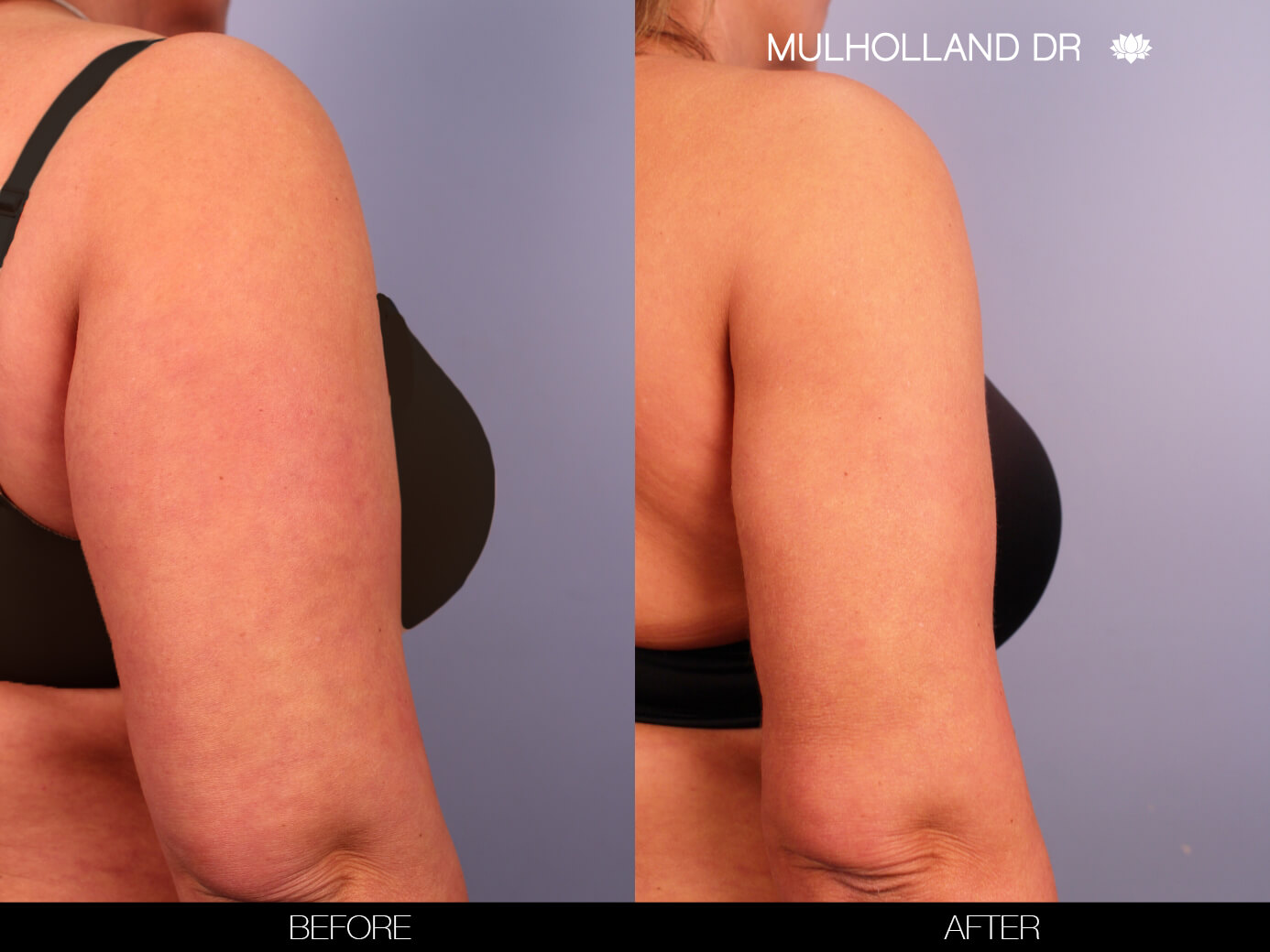 Arm Lift - Before and After Gallery – Photo 11