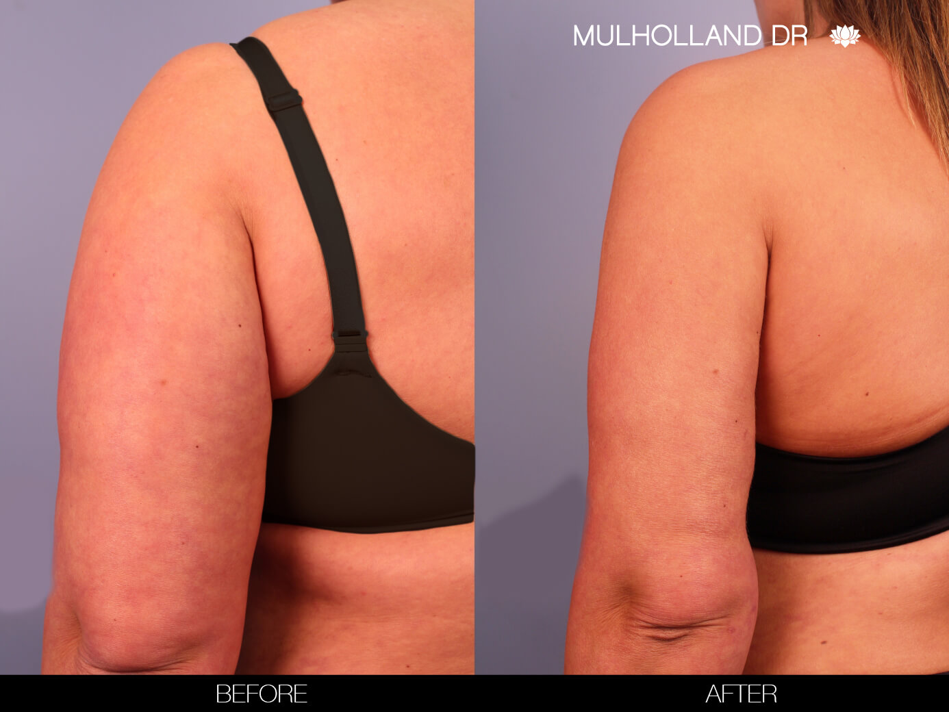 Arm Lift - Before and After Gallery – Photo 12