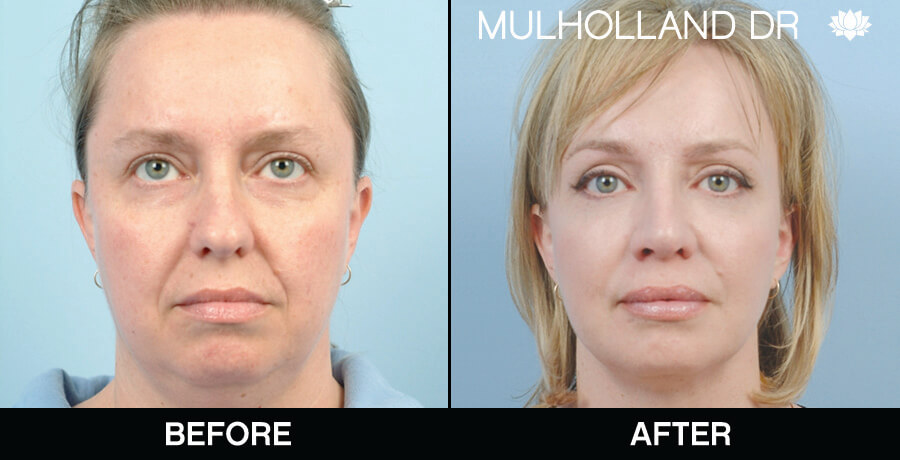 Facelift - Before and After Gallery – Photo 13