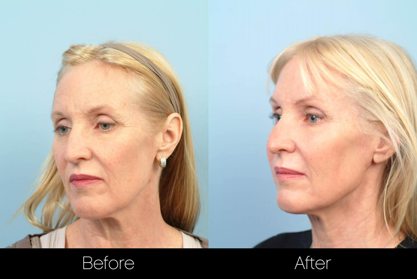 ThreadLift - Before and After Gallery – Photo 13