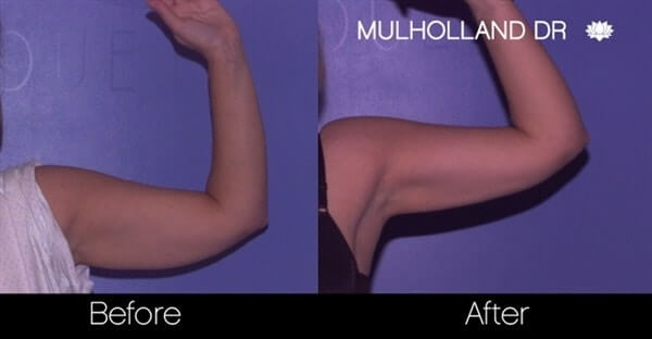 Arm Lift - Before and After Gallery – Photo 16