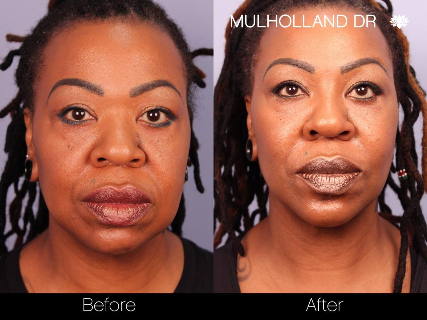 ThreadLift - Before and After Gallery – Photo 14