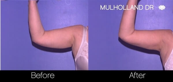 Arm Lift - Before and After Gallery – Photo 17