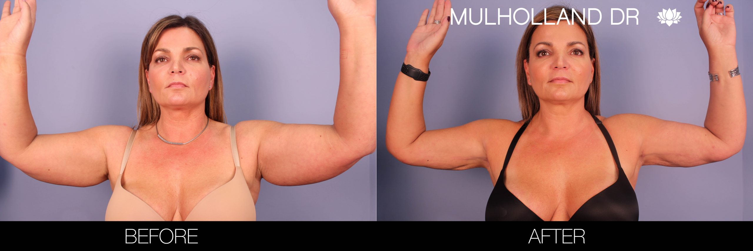 Arm Lift - Before and After Gallery – Photo 1