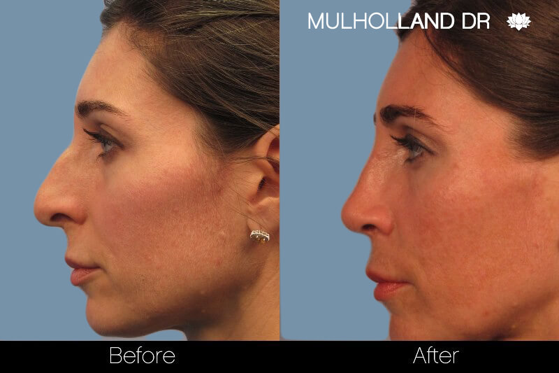 Rhinoplasty - Before and After Gallery – Photo 1