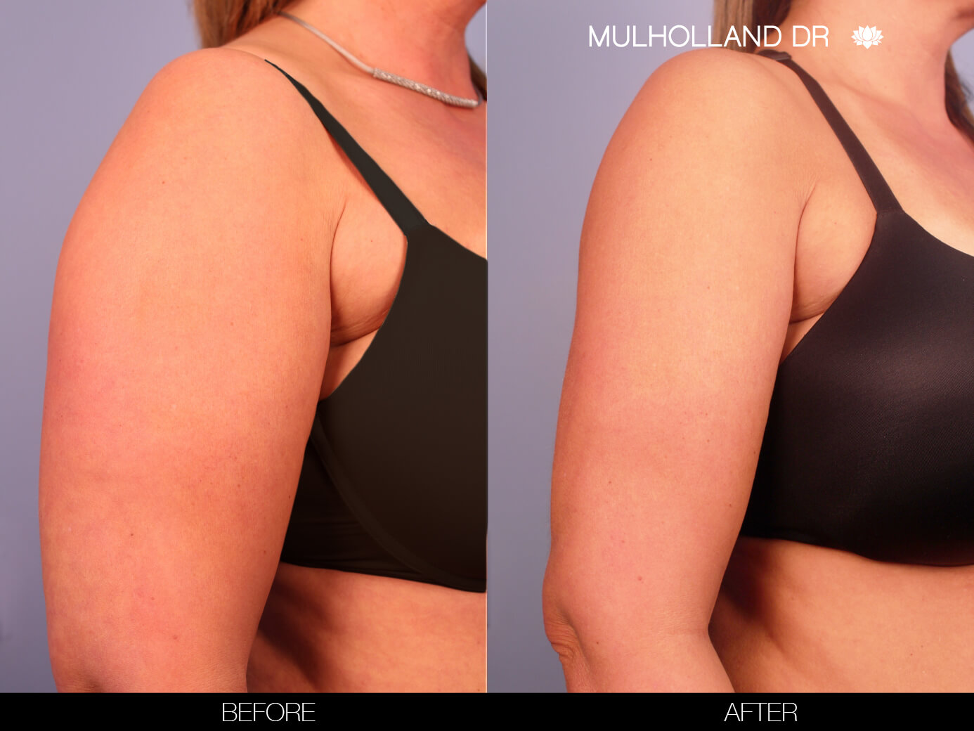 Arm Lift - Before and After Gallery – Photo 2