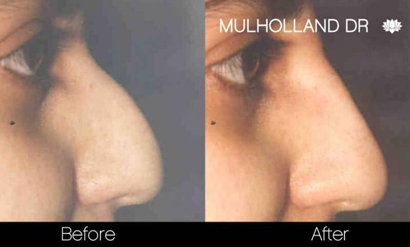 Rhinoplasty - Before and After Gallery – Photo 32
