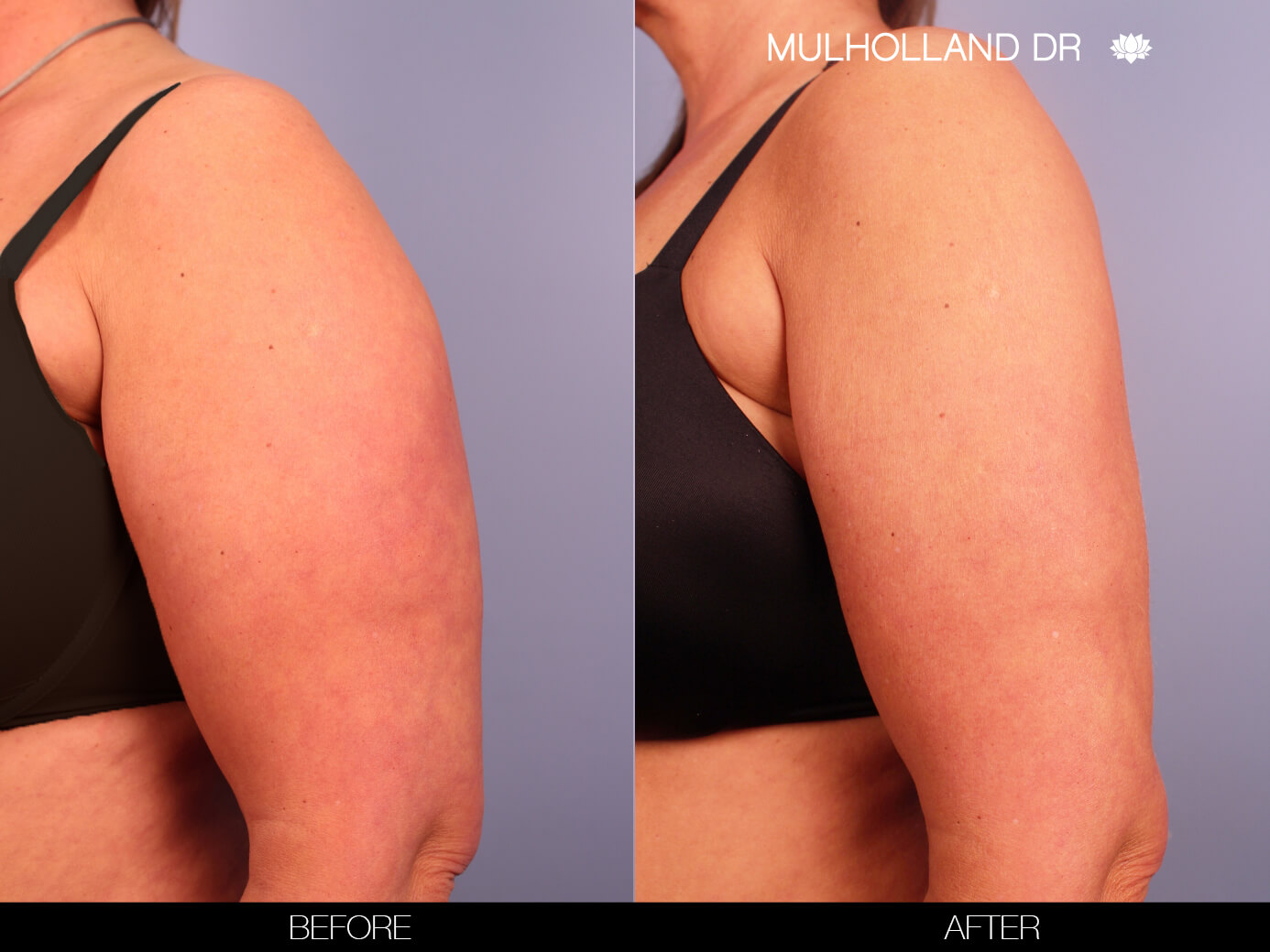 Arm Lift - Before and After Gallery – Photo 3