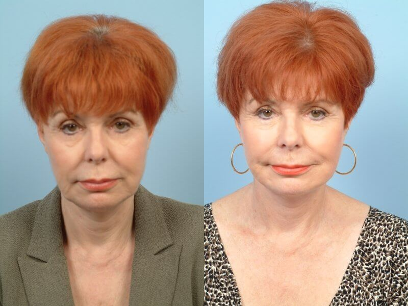 ThreadLift - Before and After Gallery – Photo 43