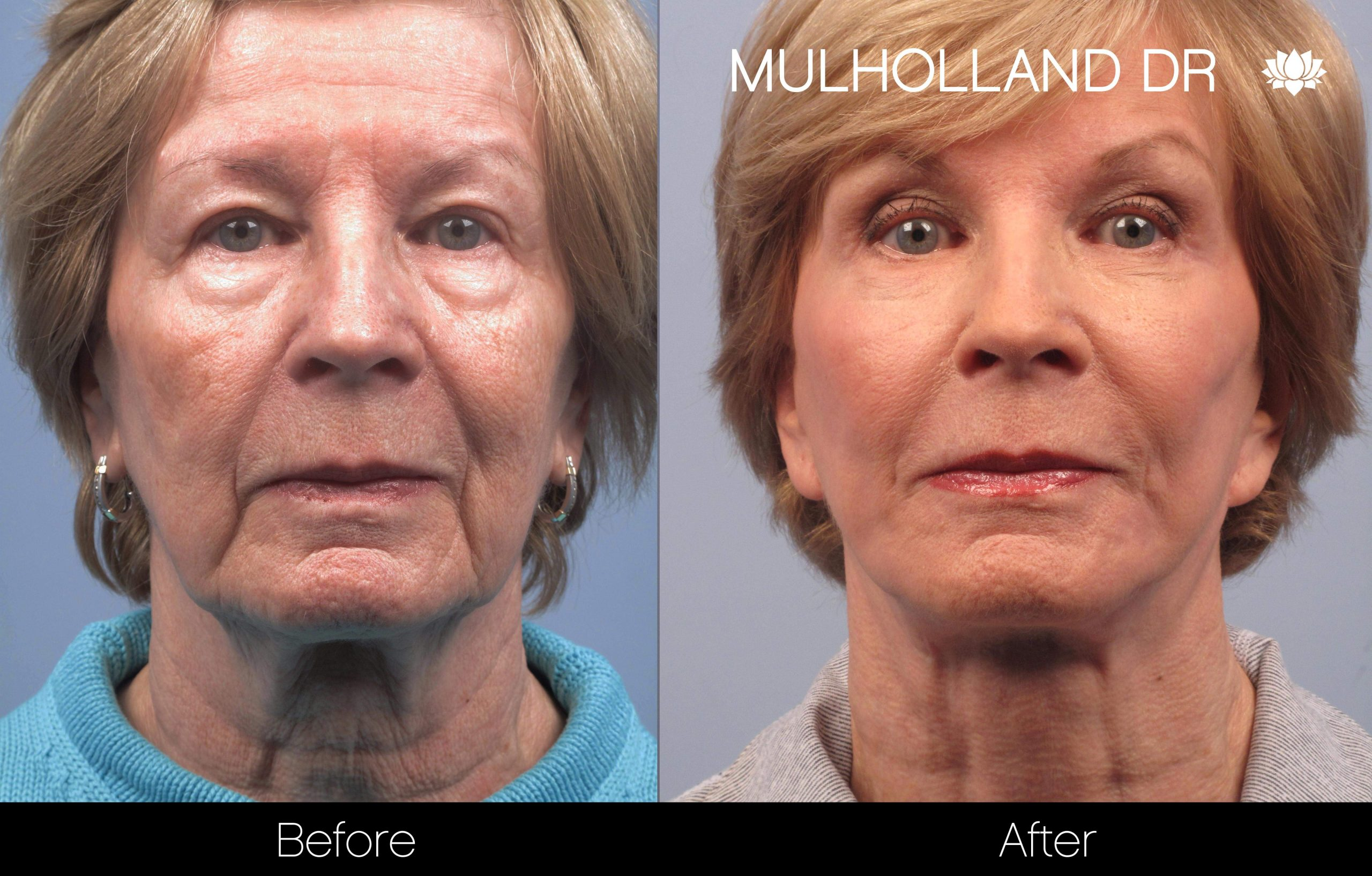 Facelift - Before and After Gallery – Photo 48