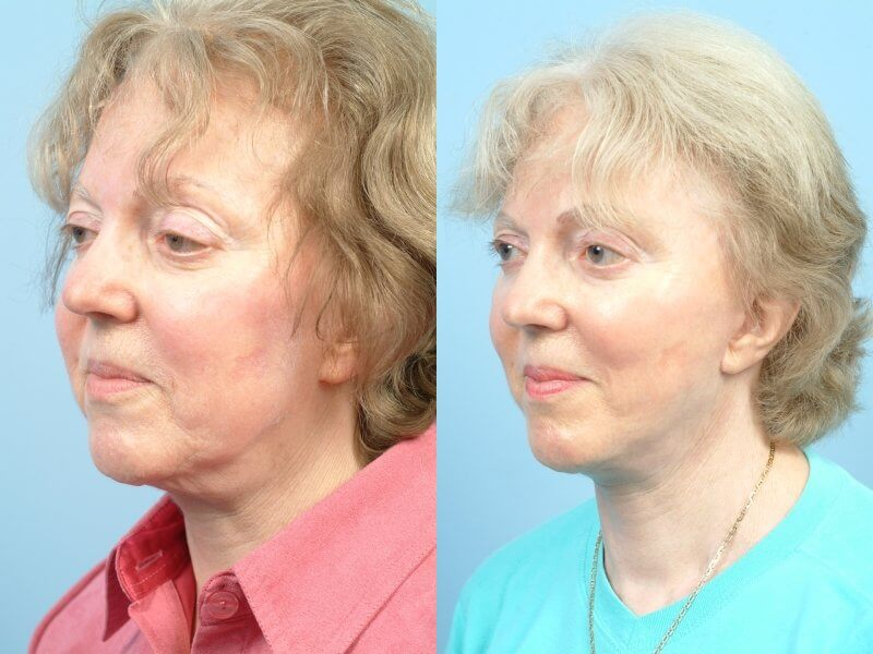 ThreadLift - Before and After Gallery – Photo 46