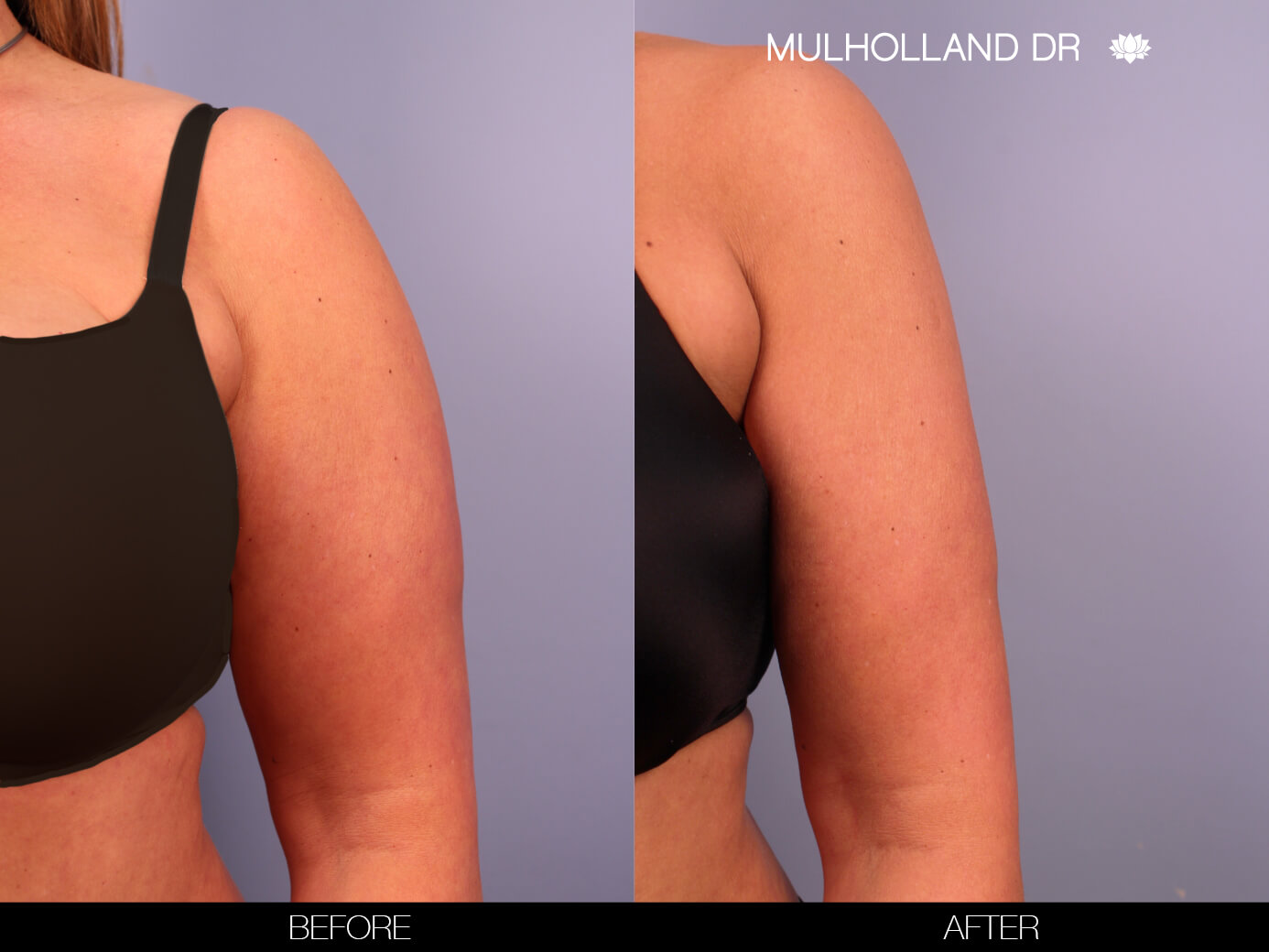 Arm Lift - Before and After Gallery – Photo 4