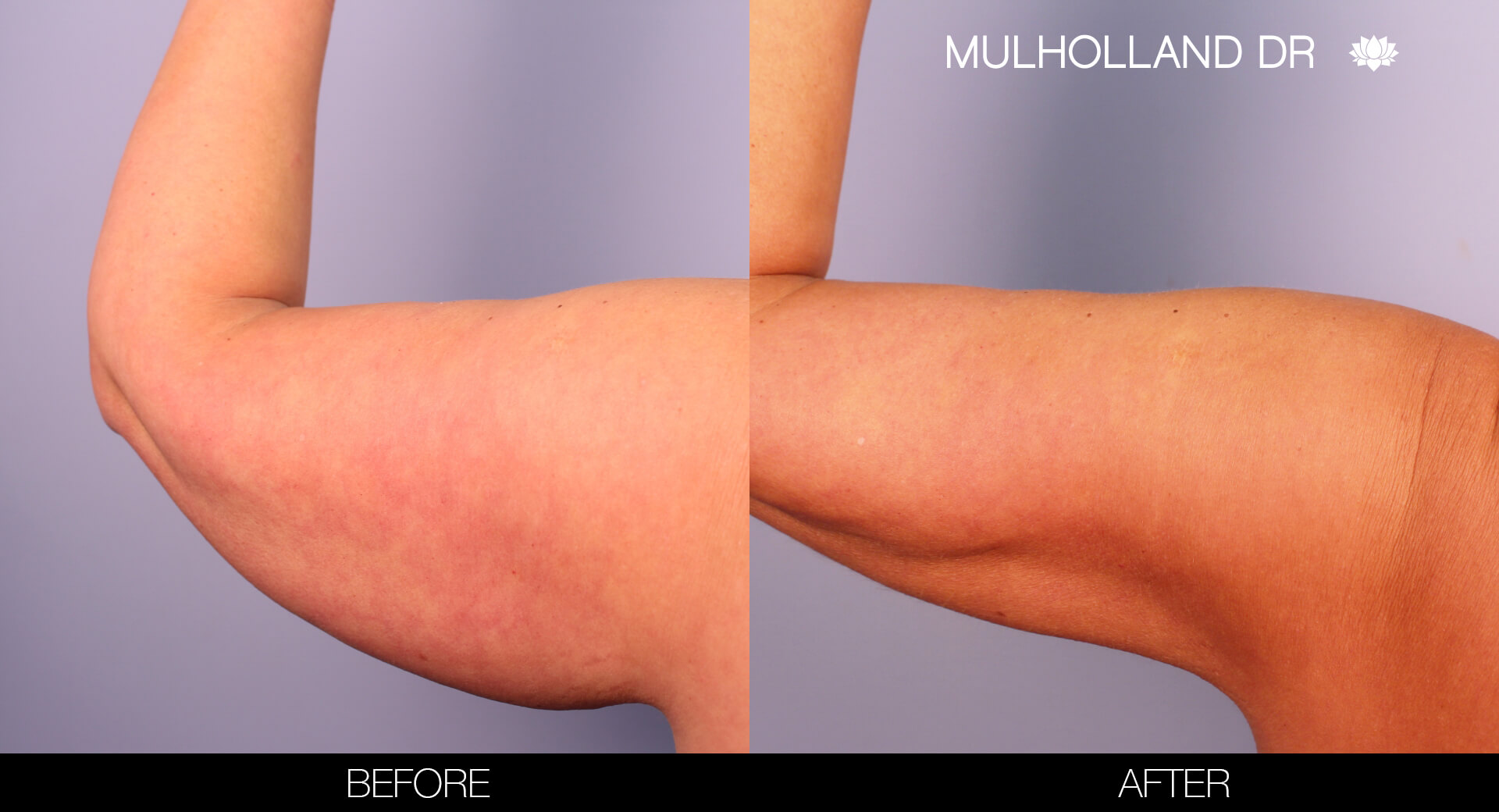 Arm Lift - Before and After Gallery – Photo 7